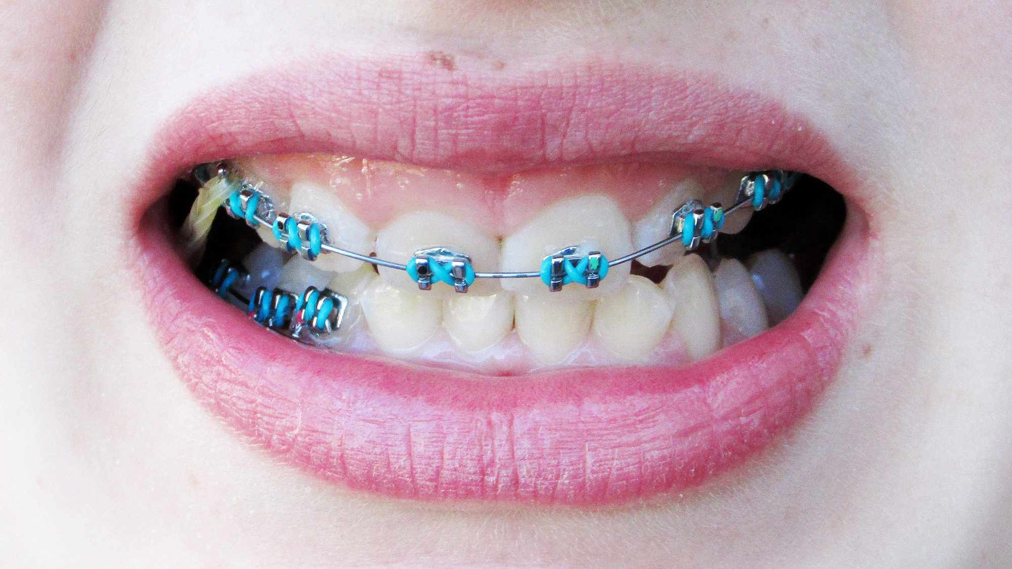 Cool Braces Colors Ideas Girls